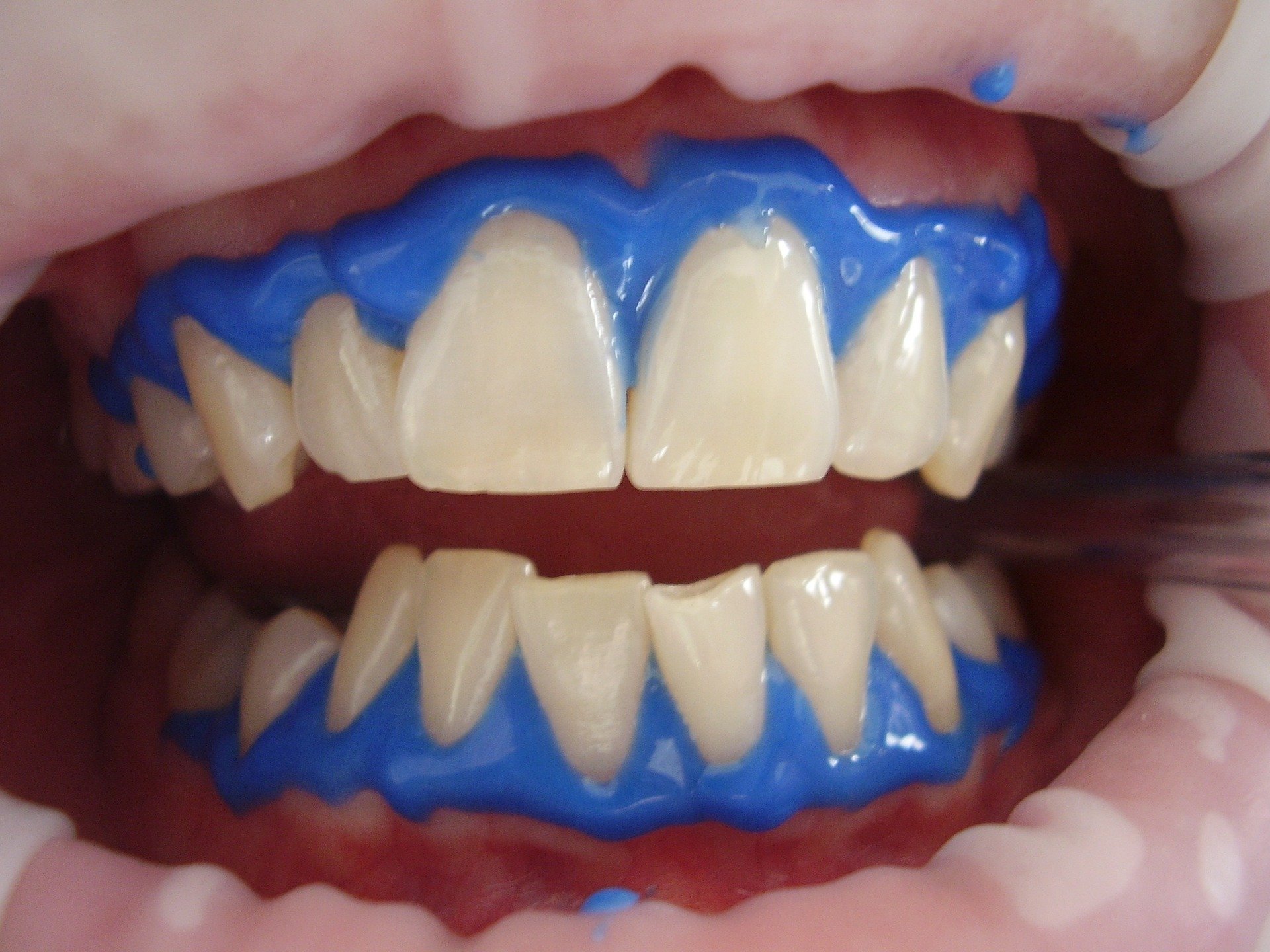 4 Amazing Benefits You Can Get With Laser Teeth Whitening