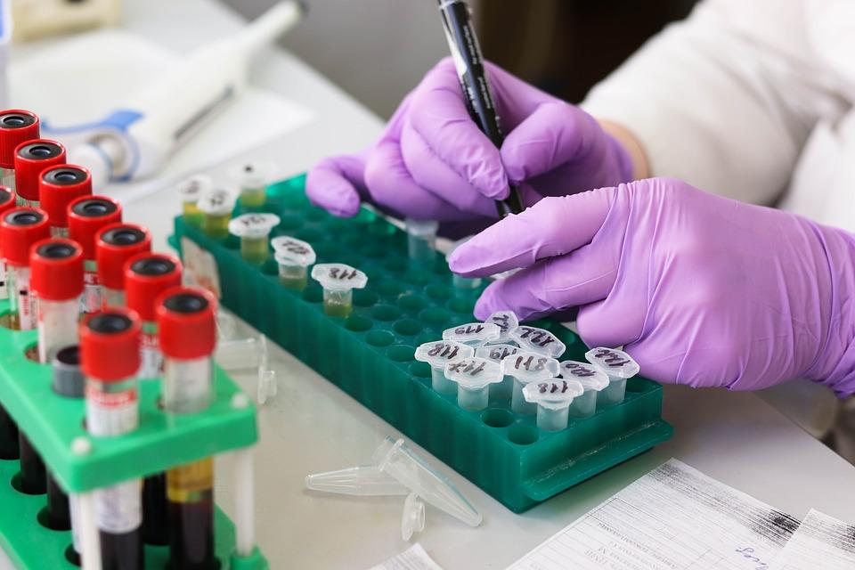 Why Take A Rapid STD Test