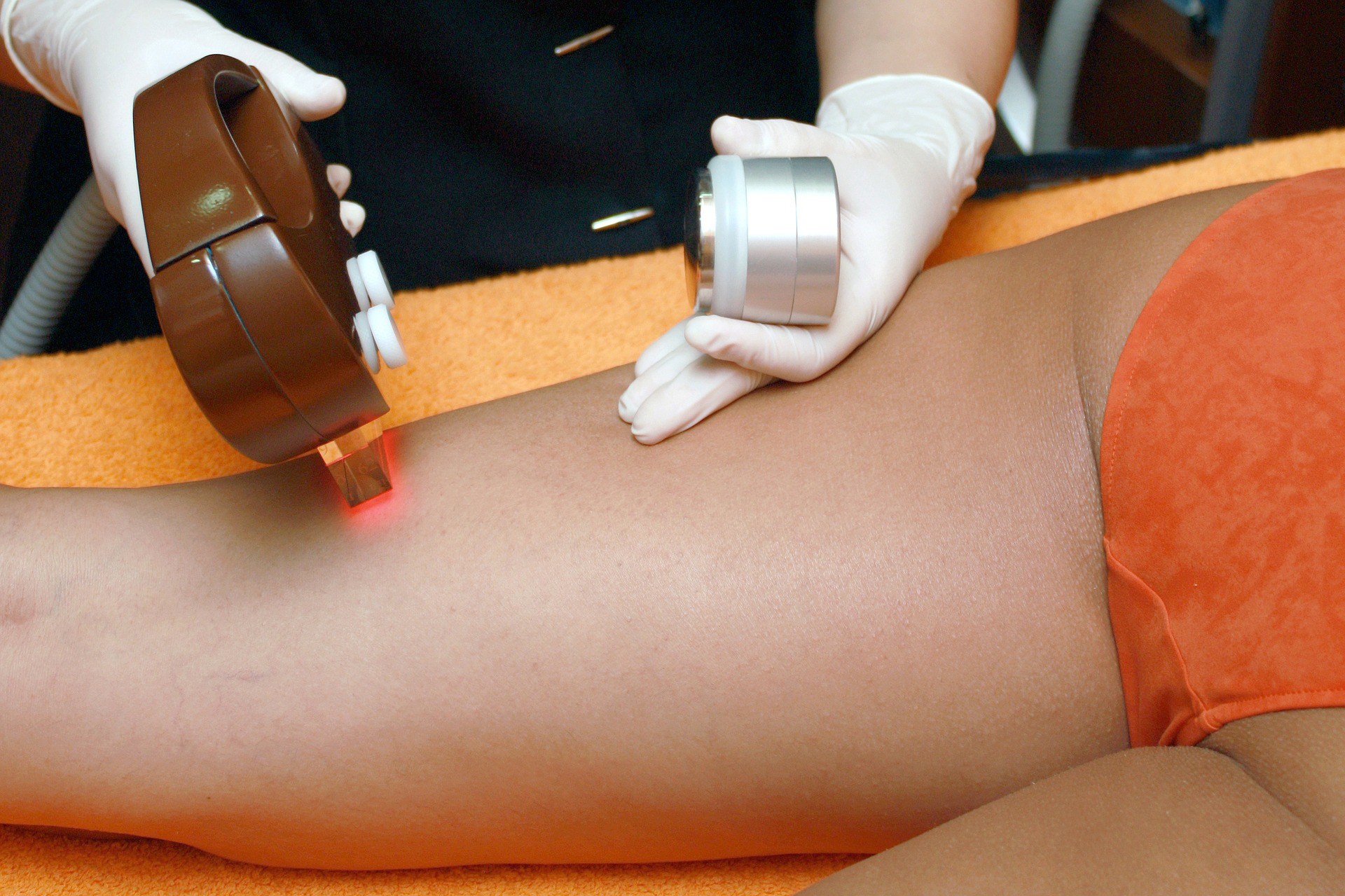 IPL Laser Reviews For Treatment Of Hyper Pigmentation