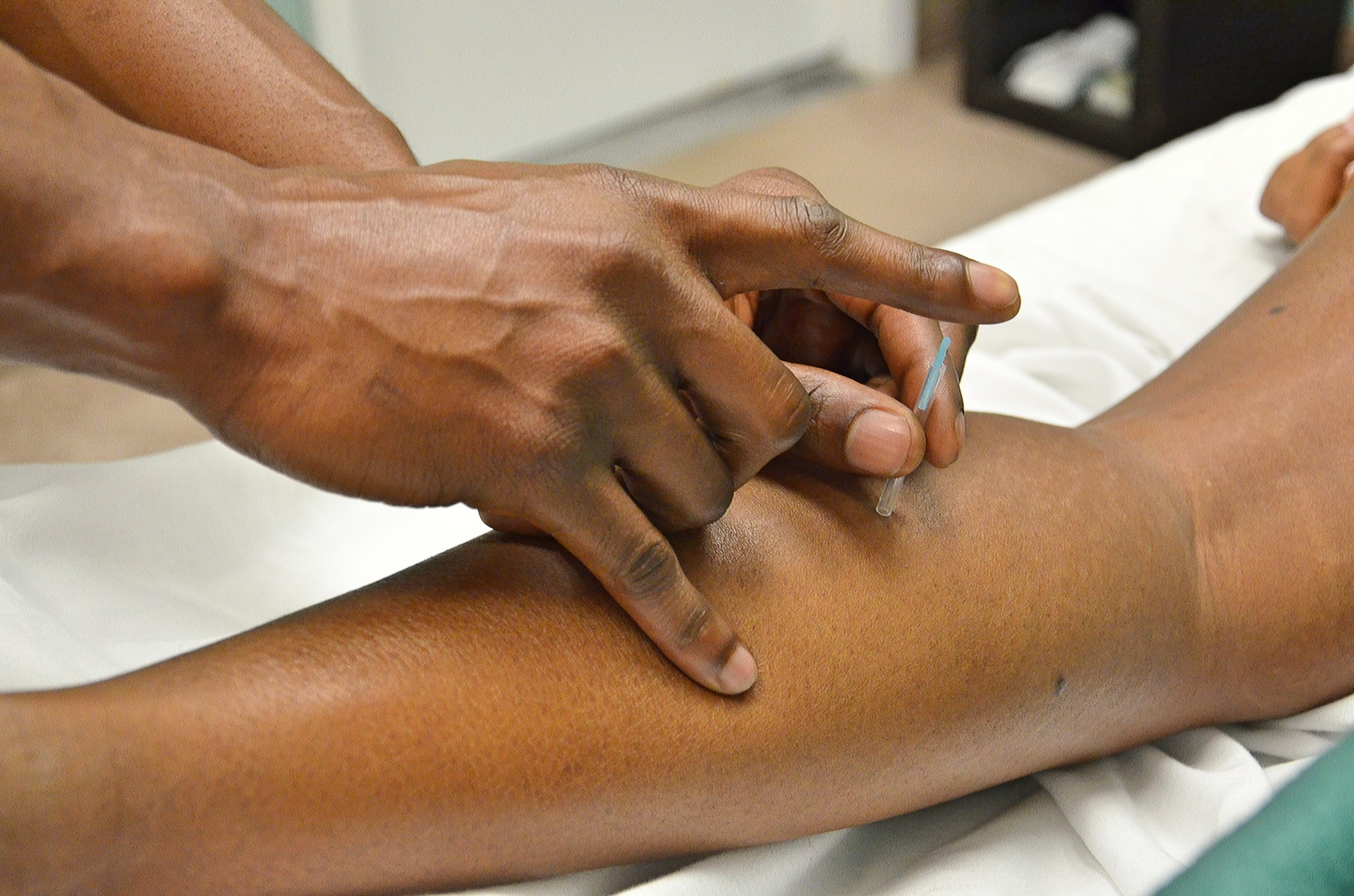 How Acupuncture Montreal Can Improve Your Health